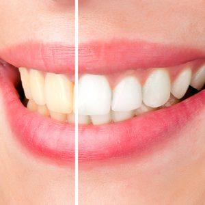 como funciona o clareamento dental - antes e depois do tratamento. um sorriso amarelado e outro brilhante