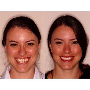 antes e depois da aplicação de botox