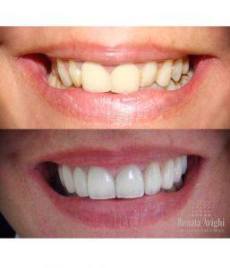 dente antes e depois da lente de contato. mudança no formato cor e alinhamento