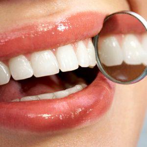 sorriso com dentes espelhados aplicando resina