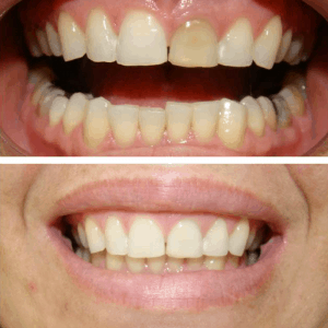 dente antes e depois do clareamento interno