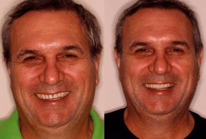 58d951e99a005 Hoje vamos falar sobre o Sorriso Invertido. Esse é um tema super comum na  odontologia estética. Muitos dos pacientes que vem até a Clínica Renata  Avighi ...