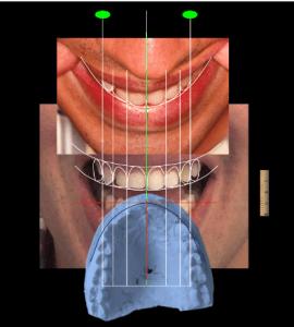 tecnologia digital na odontologia - planejamento de sorriso 3D