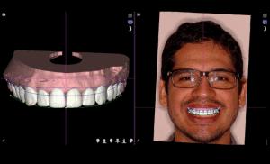 planejamento de design de sorriso - imagem digital