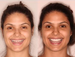 tratamento antes e depois com as lentes de contato dentais