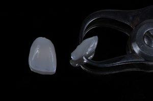 alicate com uma lente de contato dental e outra lente ao lado