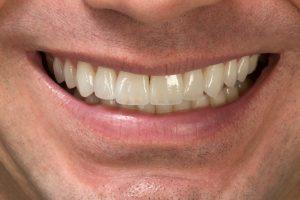 lentes de contato dental - sorriso após lente de contato dental
