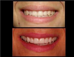 Antes e depois mantendo a naturalidade dos dentes