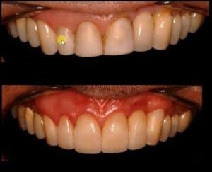 aca631717ae54 Hoje eu queria explicar pra vocês como definimos quantos elementos envolvem  uma transformação de sorriso com lentes de contato dentais.