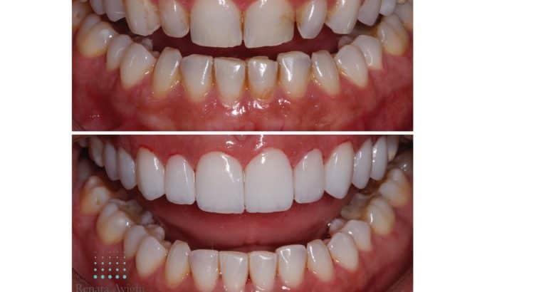 Sorriso Dentista Piracicaba