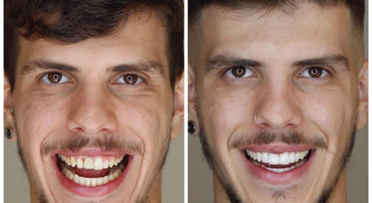 Dentista em Piracicaba