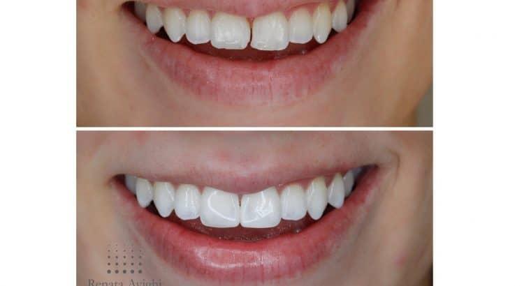 Clínica Odontológica Piracicaba